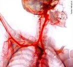 As principais células do sangue são produzidas na medula óssea, uma estrutura gelatinosa que fica dentro de vários ossos do corpo. Mas é a água que a gente bebe a maior responsável pelo volume de cerca de 5 litros de sangue que circula no organismo. É essa água que forma a parte líquida do sangue, o plasma, substância à qual se misturam três tipos de células produzidas na medula óssea: os glóbulos vermelhos, os glóbulos brancos e as plaquetas. </br></br> Palavras-chave: sangue, células, fisiologia, sistema cardiovascular.