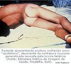 O Tétano é um problema de saúde mundial. A doença ocorre quase que exclusivamente em pessoas não vacinadas ou vacinadas inadequadamente, em qualquer parte do mundo. Nos países em desenvolvimento, a maioria dos casos ocorre em recém-nascidos e crianças pequenas. A foto é de um paciente apresentando postura conhecida como &quot;opstótomo&quot;, decorrente da contratura muscular generalizada causada pela toxina tetânica. </br></br> Palavras-chave: tétano, toxina tetânica, espasmos musculares.