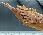 O fio de cabelo é um pelo, e possui a mesma estrutura de todos os pelos do corpo humano, porém tem suas particularidades. Diferenciam-se dos pelos comuns pela sua elevadíssima concentração por área de pele e pelo desenvolvimento em comprimento. Os cabelos não servem só como um aliado estético, mas também funcionam como um isolante térmico, protegendo a cabeça das radiações solares e da abrasão mecânica. Também podem ser um indicativo de diversas doenças que se manifestam alterando sua estrutura. <br /><br /> Palavras-chave: cabelo, cabeça, couro cabeludo, cutícula, córtex, folículo piloso, glândula sebácea, medula, pele, pelo.