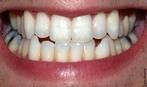 Os dentes cortam, prendem e trituram os alimentos. Num ser humano adulto, existem 32 dentes, dezesseis em cada arco dental. </br></br> Palavras-chave: dente, digestão, mastigação.