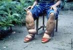 A filariose ou elefantíase é a doença causada pelos parasitas nematóides <em>Wuchereria bancrofti, Brugia malayi e Brugia timori</em>, comumente chamados filária, que se alojam nos vasos linfáticos, causando linfedema. Esta doença é também conhecida como elefantíase, devido ao aspecto do(s) membro(s) afetado(s) elefante do paciente com esta doença. </br></br> Palavras-chaves: filariose, elefantíase, filária.