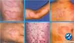 A hanseníase, conhecida oficialmente por este nome desde 1976, é uma das doenças mais antigas na história da medicina. É causada pelo bacilo de Hansen, o Mycobacterium leprae: um parasita que ataca a pele e nervos periféricos, mas pode afetar outros órgãos como o fígado, os testículos e os olhos. Não é, portanto, hereditária. </br></br> Palavras-chave: hanseníase, bacilo de Hansen, lepra.