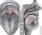 As amígdalas e adenóides são massas de tecido linfático, semelhantes aos gânglios que se encontram no pescoço, virilha e axilas. As amígdalas se situam na parte posterior da garganta de cada lado da úvula. Já a adenóide não pode ser vista sem instrumentos especiais, pois está localizada no fundo do nariz e escondida pelo palato e pela úvula, quando olhamos pela boca. Os cientistas acreditam que as amígdalas e adenóides funcionam como parte do sistema imunológico de nosso organismo, ao filtrar os germes que tentam invadir nosso corpo, ajudando também na formação de anticorpos contra eles. Esta atividade ocorre durante os primeiros anos de vida, diminuindo de importância a medida que a criança cresce. <br /><br /> Palavras-chave: amígdalas, adenóide, gânglios, palato, sistema imunológico, tecido linfático, úvula.