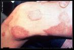 A Lepra (hanseníase, morfeia, mal de Hansen, mal de Lázaro) é causada pelo <em>Mycobacterium leprae</em>, ou bacilo de Hansen, que é um parasita intracelular obrigatório, com afinidade por células cutâneas e por células dos nervos periféricos, que se instala no organismo da pessoa infectada, podendo se multiplicar. O tempo de multiplicação do bacilo é lento, podendo durar, em média, de 11 a 16 dias. O <em>M. leprae</em> tem alta infectividade e baixa patogenicidade, isto é infecta muitas pessoas no entanto só poucas adoecem. O homem é reconhecido como única fonte de infecção (reservatório), embora tenham sido identificados animais naturalmente infectados. </br></br> Palavras-chave: hanseníase, morfeia, mal de Hansen, mal de Lázaro, lepra.