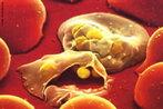 A imagem mostra as hemácias destruídas pelos protozoários causadores da malária. A malária é causada por protozoários do gênero Plasmodium, como o Plasmodium vivax, Plasmodium falciparum, Plasmodium malariae e Plasmodium ovale: os dois primeiros ocorrem em nosso país e são mais frequentes na região amazônica. Essa doença tem como vetor, fêmeas de alguns mosquitos do gênero Anopheles. Estas, mais ativas ao entardecer, podem transmitir a doença para indivíduos da nossa espécie, uma vez que liberam os parasitas no momento da picada, em sua saliva. </br></br> Palavras-chave: malária, contágio, hemácias, mosquitos do gênero Anopheles, paludismo, parasita, prevenção, protozoários, sangue, sntomas, prevenção.