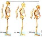 Osteoporose é a doença óssea metabólica mais freqüente, sendo a fratura a sua manifestação clínica. É definida patologicamente como &quot;diminuição absoluta da quantidade de osso e desestruturação da sua microarquitetura levando a um estado de fragilidade em que podem ocorrer fraturas após traumas mínimos&quot;. É considerada um grave problema de saúde pública, sendo uma das mais importantes doenças associadas com o envelhecimento. </br></br> Palavras-chave: osteoporose, diagnóstico, sintomas.