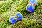 O cientista suíço Martin Oeggerli se especializou em tirar fotografias de grãos de pólen através de microscópios. Sua intenção é mostrar a beleza e a diferença entre esses grãos. O polén da miosótis foi aumentado ainda mais pelo microscópio de Oeggerli. As fotos do suíço já foram publicadas em diversas revistas, entre elas, a National Geographic. </br></br> Palavras-chave: pólen, microscopia, botânica, biodiversidade.